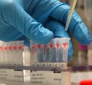 Laborator Analize Medicale Philos - Slobozia